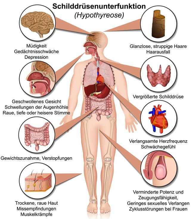 Graphik mit Angaben zu Auswirkungen der Schilddrüsen Unterfunktion